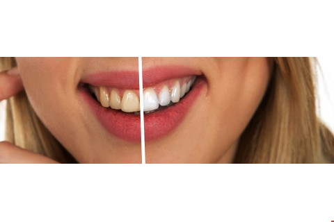 Mitos e verdades sobre o clareamento dental
